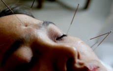 A Chinese Woman Receives Acupuncture Treatment