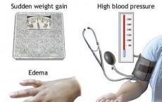 Brief facts about pre-eclampsia