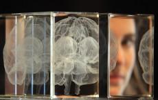 Brain mapping.