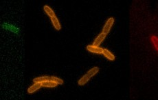 RfDAA Probes Light up Bacterial Cell Walls (IMAGE)
