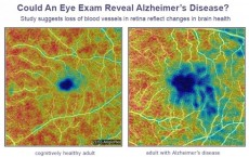 Could An Eye Doctor Diagnose Alzheimer's Before You Have Symptoms? (IMAGE)