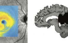 Eye Degeneration And Brain Lesion After Stroke (IMAGE)