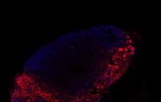 CNIO researchers assess melanoma progression with a new liquid biopsy technique