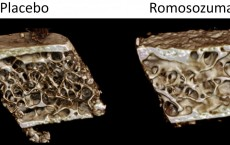 New Osteoporosis Therapy's Dual Effects on Bone Tissue (IMAGE)