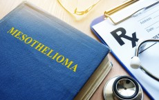 Radiotherapy Advancements Improve Pleural Mesothelioma Treatment