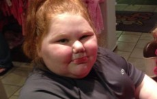 Gastric Bypass Operation Can Save Girl With Rare Eating Disorder