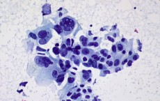 Cancer cells different parts of the body could be identified in their early stages.