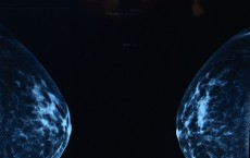 A former mammogram technician in Georgia put the lives of women in jeopardy.